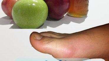 apple cider vinegar and gout