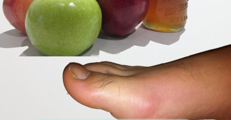 apple cider vinegar and gout