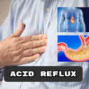 effect of apple cider vinegar on acid reflux disease