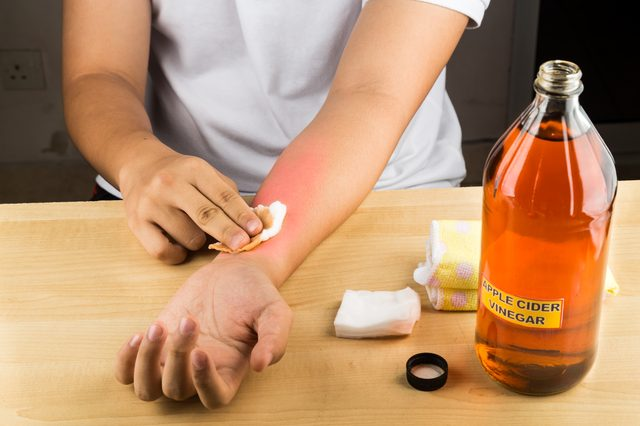 apple cider vinegar ringworm