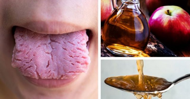 Apple Cider Vinegar and Candida treatment! How to use it